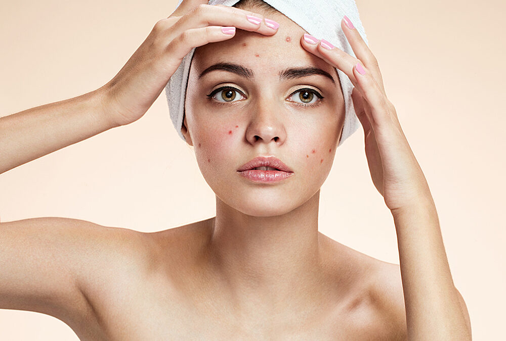 Dr. Haley Acne Treatment Recommendations: