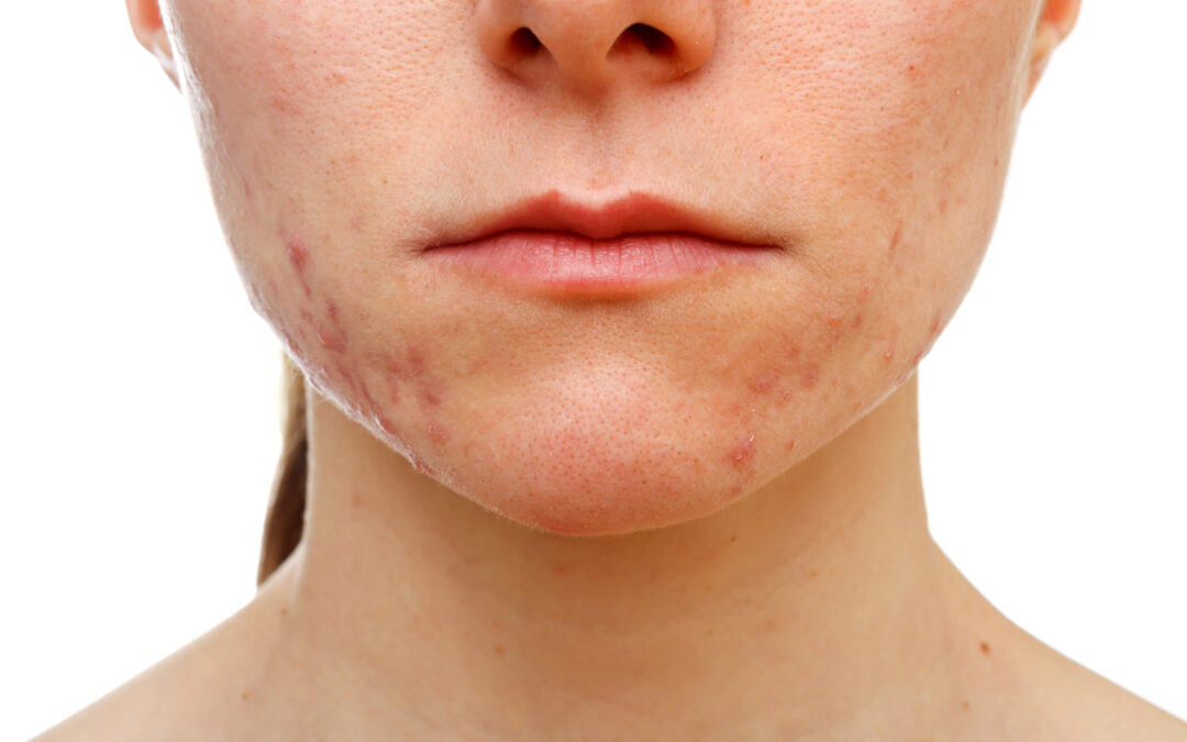 16 Things To Know Before Starting an Acne Treatment