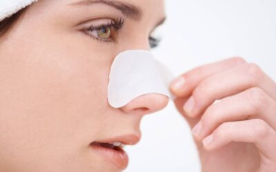Beating blackheads